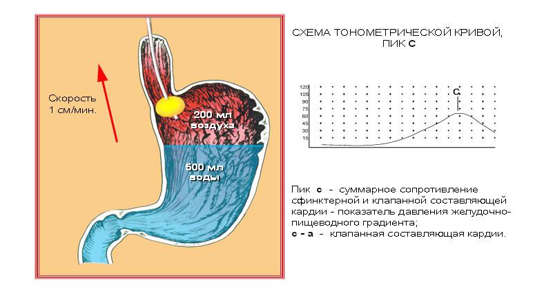 лечение геморроя склеротерапия отзывы
