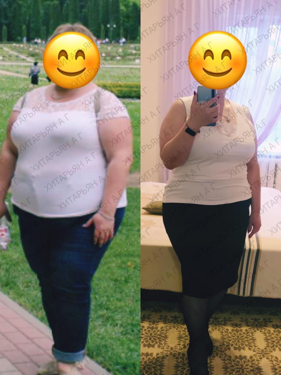 👨⚕️Современный метод для людей страдающих ожирением избавиться от этой проблемы - уменьшение желудка хирургическим путём.