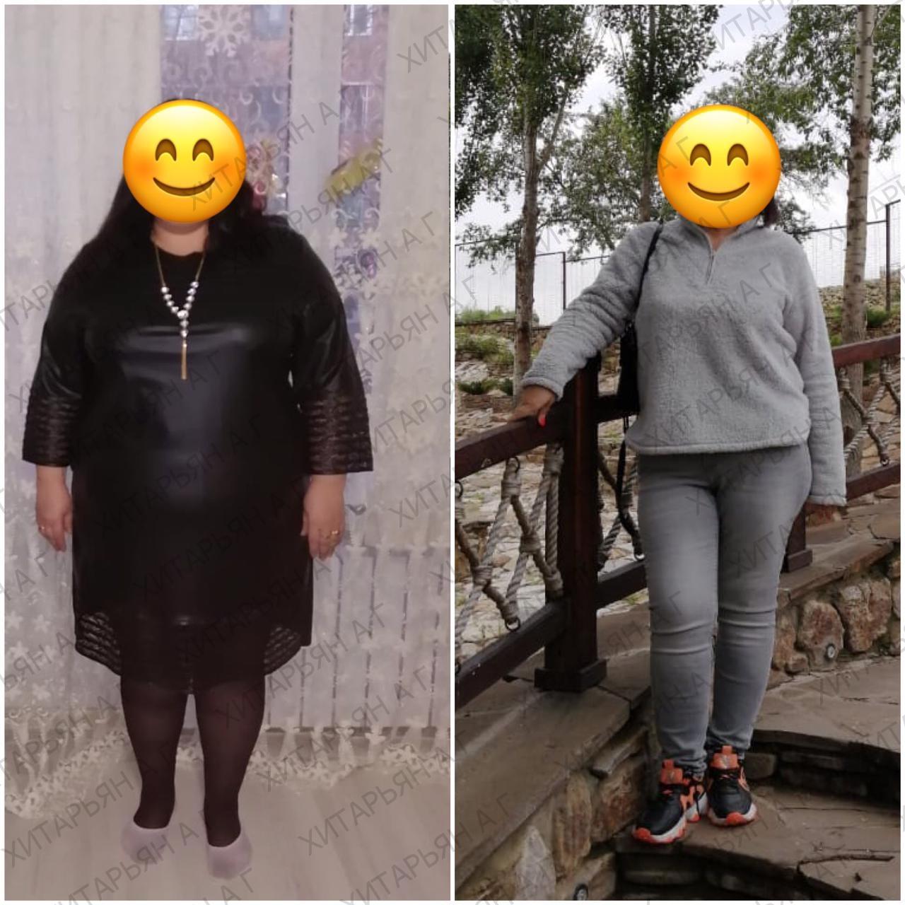 Наша бариатрическая пациентка с прекрасным результатом похудения и благодарным отзывом! 🙏