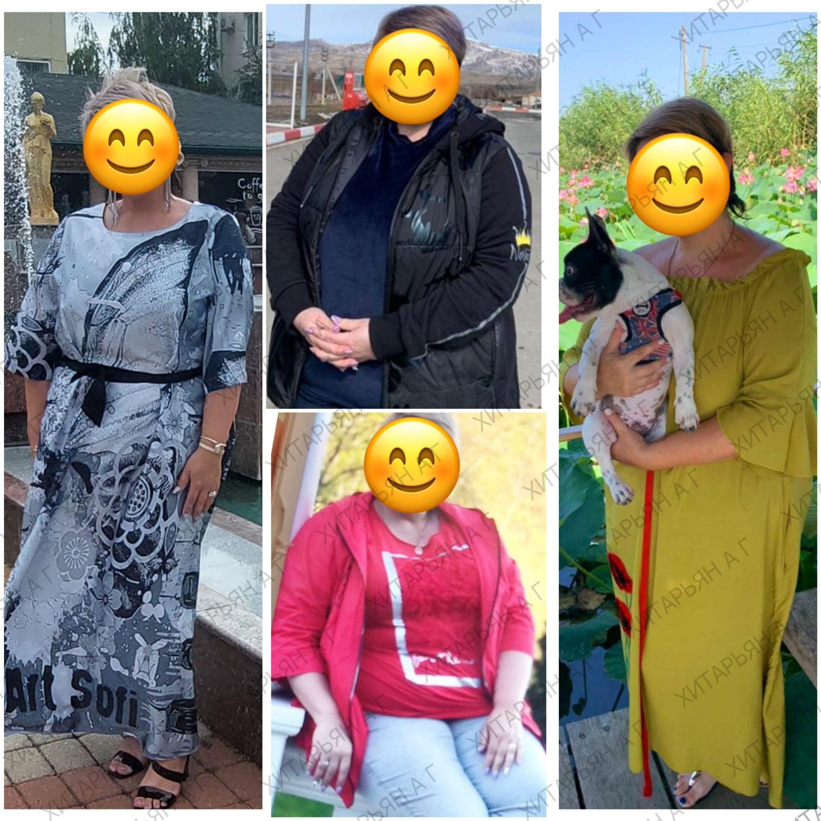 Наша бариатрическая пациентка с прекрасным результатом похудения . 👍