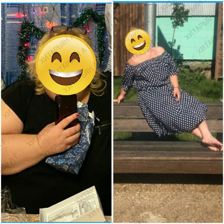 - 80 кг за 1 год у нашей пациентки! 😍