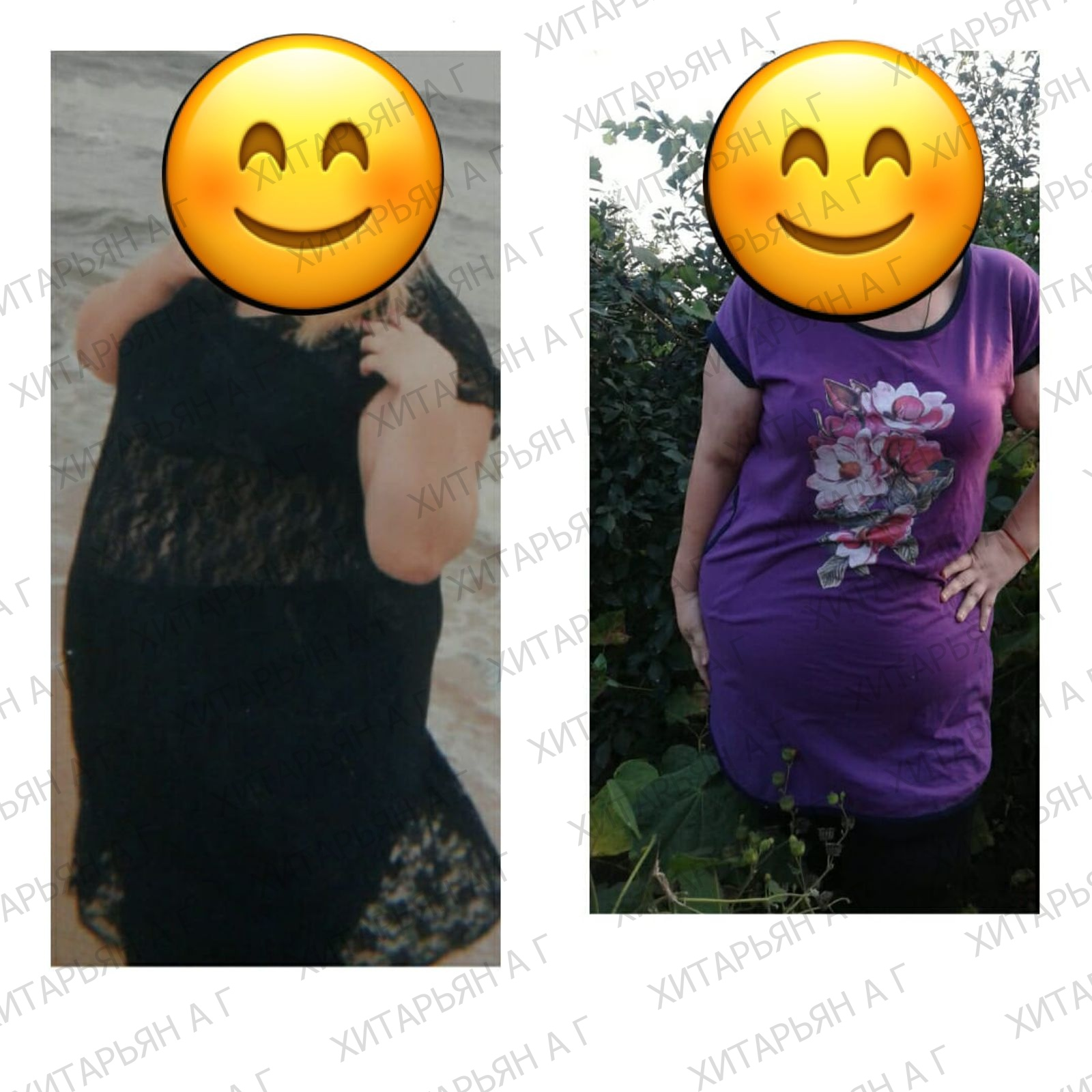 -55 кг за 4 месяца после продольной резекции! 🙌